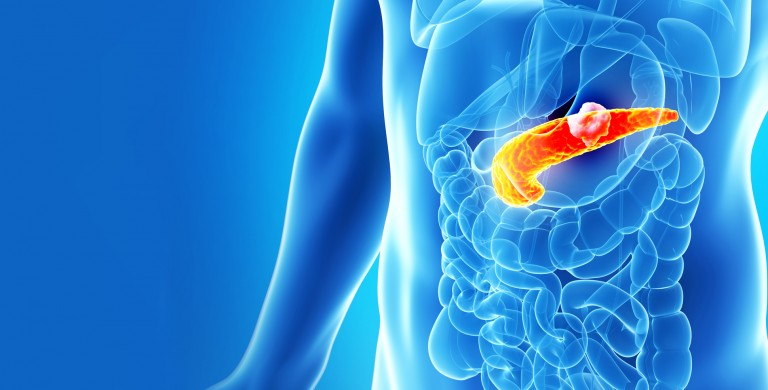 """Image result for pancreatic cancer"""""""